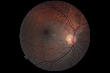Photographie d'un nerf optique non atteint par un glaucome