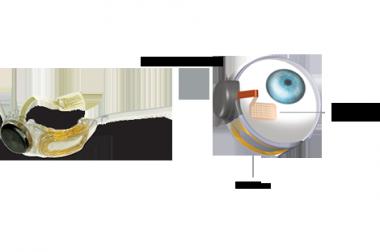 Implant Second Sight