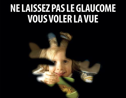 Ne laissez pas le glaucome vous voler la vue