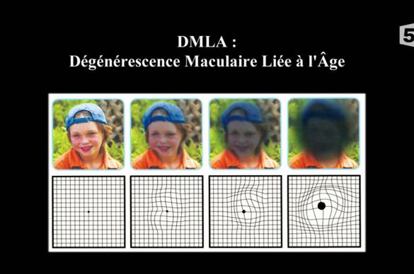 Visage qui devient sombre et lignes qui se courbent, les signes de la DMLA