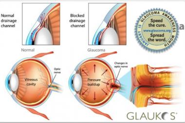 Shéma de l'oeil avec implant