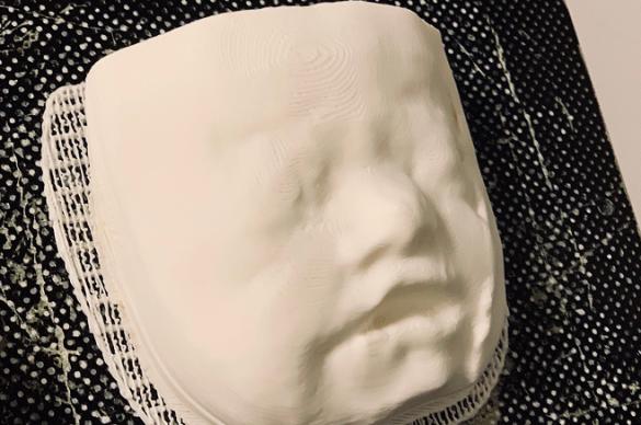 visage foetus en 3 d